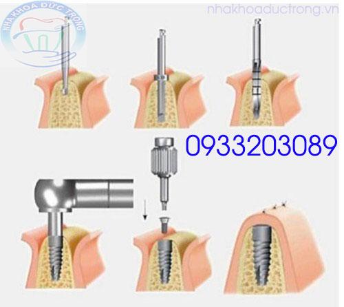 Quá trình khoa 1 chụ implant