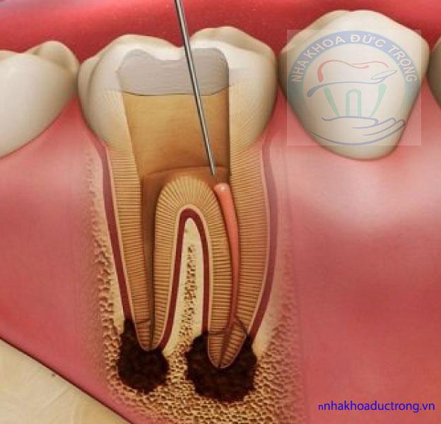 viêm tủy răng